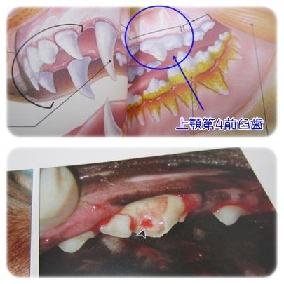 20111218 歯